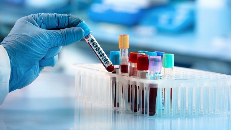 Da Malta un nuovo test del sangue per frenare il Covid-19